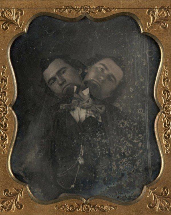 Unidentified American artist Two-Headed Man ca. 1855