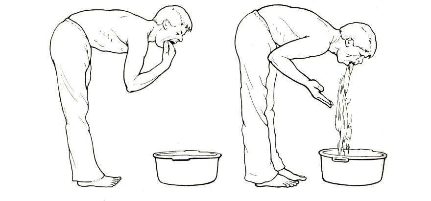 Отравление шаурмой - тошнота и температура